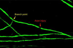Injury of a spinal cord axon after branch point. Courtesy of University of California San Diego Health Sciences